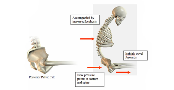 Sitting All Day Experiencing Lower Back Pain on Dry Bones 2
