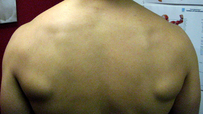 upper back muscle problems