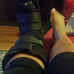 Turf Toe: A Therapist's Personal Experience with Injury
