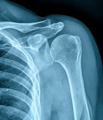 shoulder joint xray