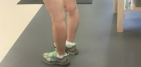 woman exhibiting hypermobility with her knees